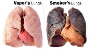 Płuca po waporyzacji i paleniu marihuany